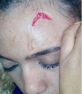 جزء من إصابة عارضة الازياء جبريلا