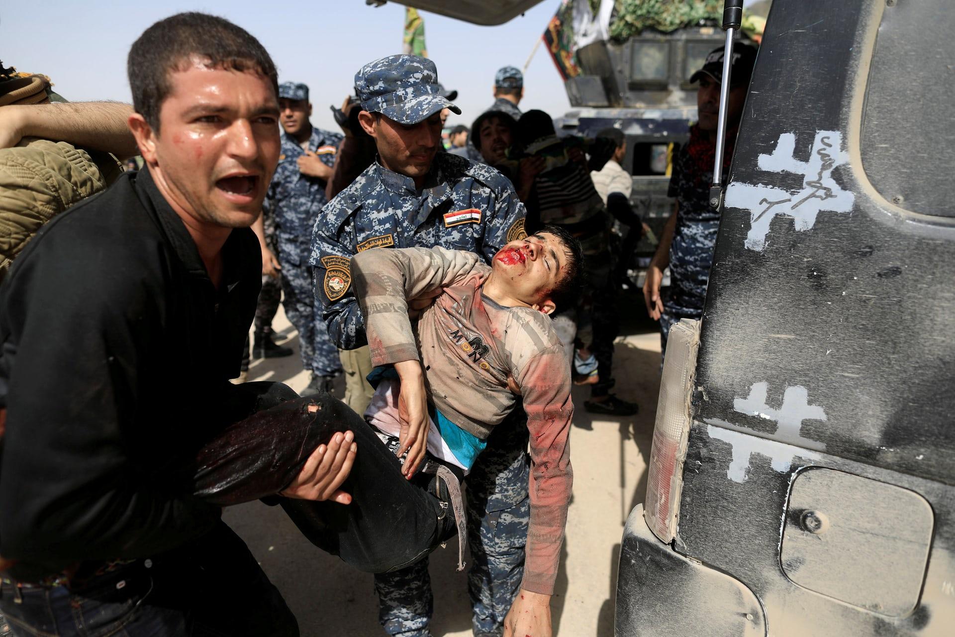 الشرطة العراقية تحمل طفل مصاب