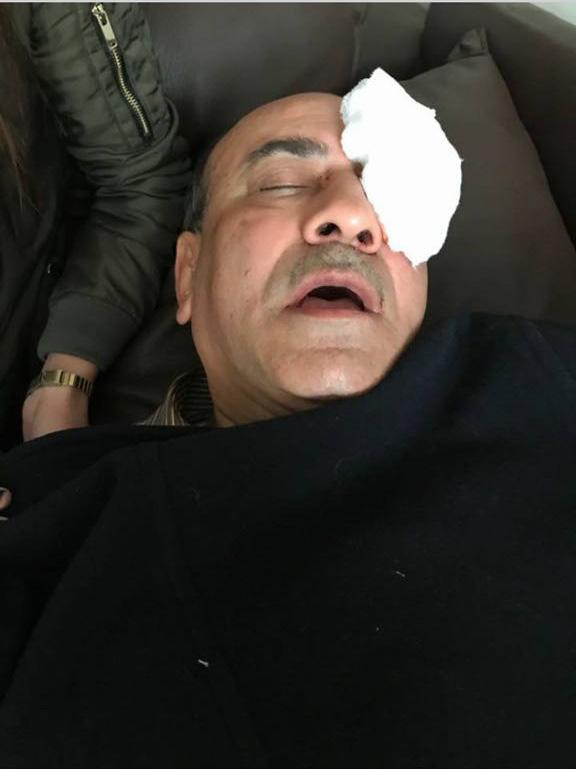 ننشر صور هشام جنينة عقب التعدي عليه أثناء خروجه من فيلته (3)