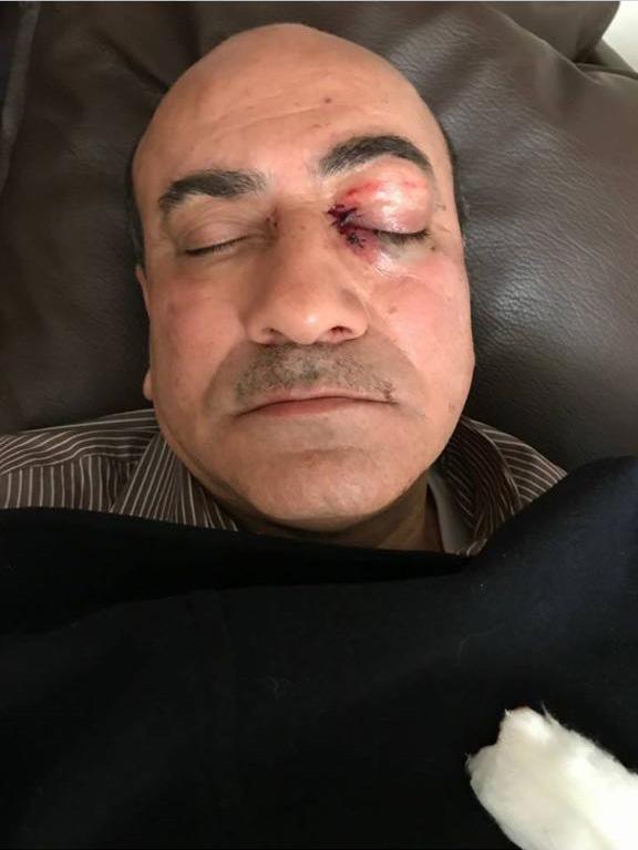 ننشر صور هشام جنينة عقب التعدي عليه أثناء خروجه من فيلته (1)