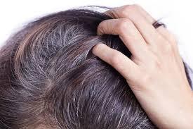 شعر الرأس
