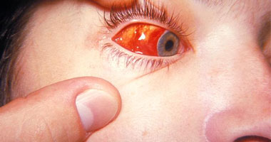 اعراض الاصابه بالتراكوما