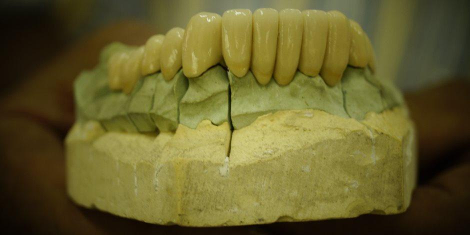 التفاصيل الكاملة عن «زراعة الأسنان» في (س & ج)