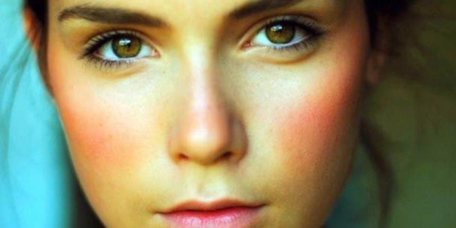 الشاي الأخضر والشوفان وزيت جوز الهند.. 6 علاجات منزلية لاحمرار الوجه
