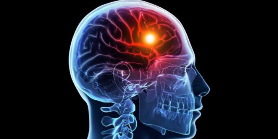 تنميل الوجه.. أول أعراض السكتة الدماغية