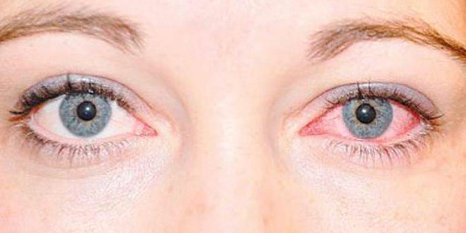 جفاف العين.. ما الذي يمكنك فعله للوقاية من أقنعة الوجه؟
