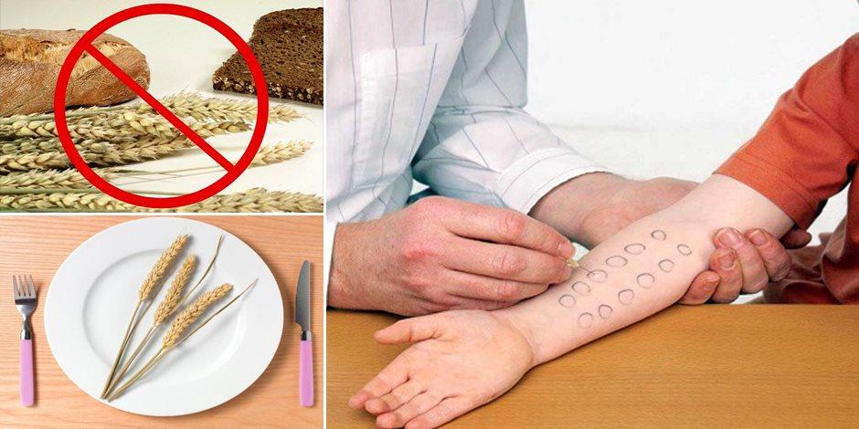 """""""حساسية القمح"""" مرض يدمر الأمعاء ويصيب كل الأعمار.. تعرف على طرق الوقاية والعلاج"""