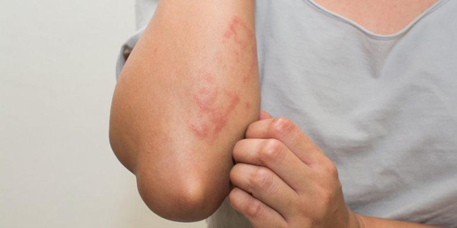 تعرف على أعراض الإصابة بـ«الإكزيما» وطرق العلاج والوقاية