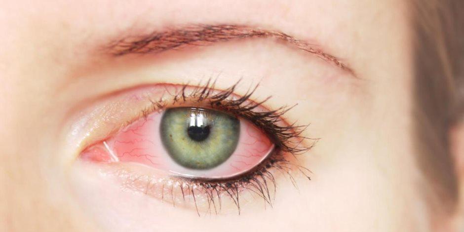 هل تسبب الصدمة النفسية فقدان البصر؟