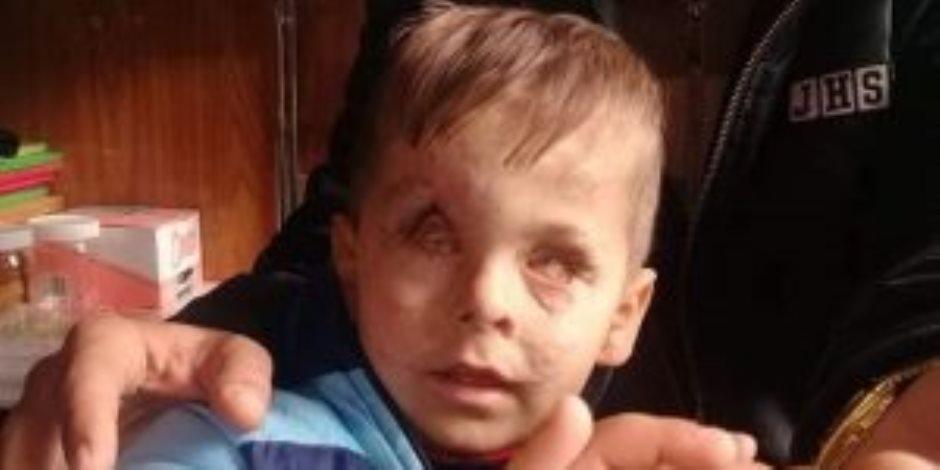 «جمعة».. طفل عمره 3 سنوات سرق «أردوغان» بصره وقتل أسرته