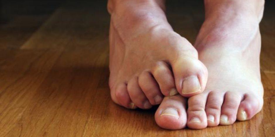 11 مرض تصيب الإنسان بسبب الفطريات.. تعرف عليها