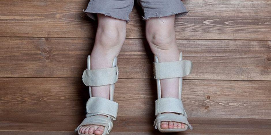 هل يعاني طفلك من «الكساح»؟.. تعرفي على الأسباب