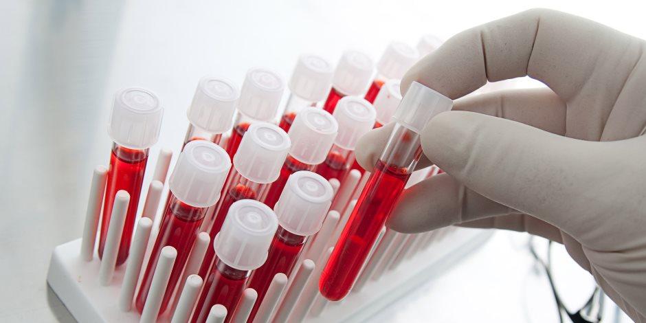 علامات قد تشير بقوة إلى تعفن الدم.. تعرف عليها