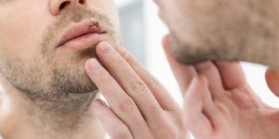 اطمن على نفسك.. تحليل HSV يكشف إصابتك بفيروس الهربس