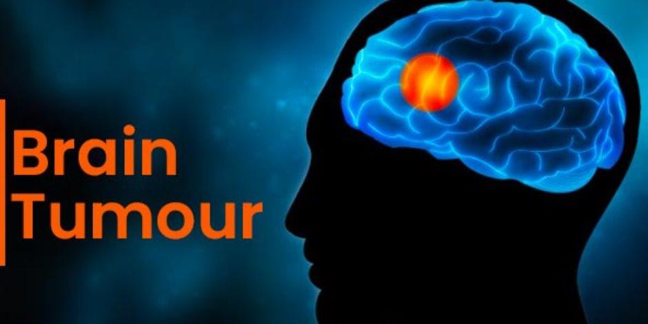 يؤثر على 200 ألف شخص عالمياً.. ورم الدماغ بين عوامل الخطر والعلاج