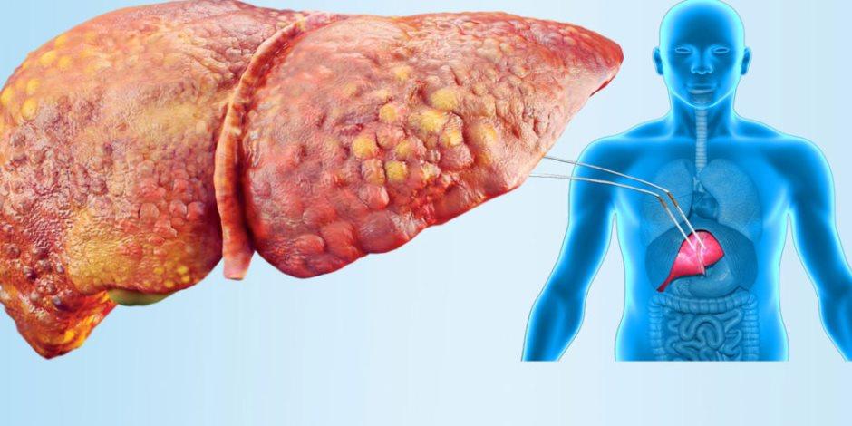 علامات الإصابة بالتهاب الكبد الدهنى غير الكحولي .. تعرف عليهما