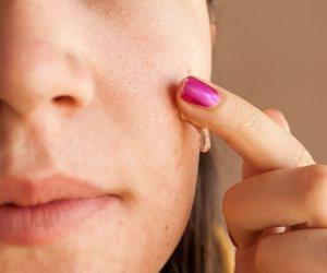نصائح تساعد على التخلص من البقع البيضاء في الجسم