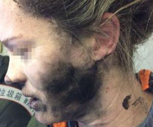 سماعة رأس تنفجر في أذن راكبة في أستراليا (صور)