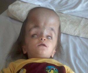 الطفل يوسف بين الحياة والموت بسبب مياه على المخ