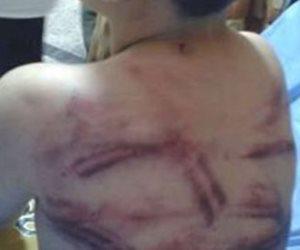 السجن 6 سنوات.. عقوبة أب عذب نجله حتى الموت