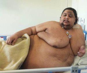أطباء مصريون ينجحون في علاج «أسمن رجل في مصر».. وإيمان مازالت تعاني في الهند