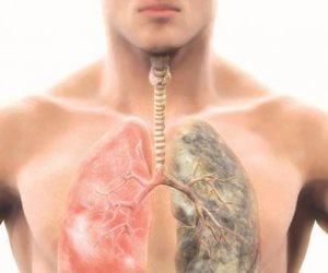 «سرطان الرئة» الأخطر على حياة الإنسان.. اعرف الأعراض والأسباب