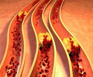 نظام غذائى صحي لمرضى ارتفاع الكوليسترول.. تعرف عليه