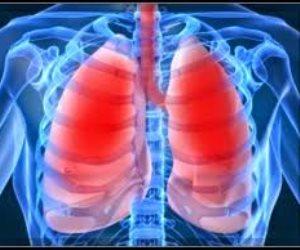 اطمن على نفسك.. آشعة الأوعية الدموية تكشف عن مشاكل الرئة