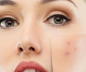 حب الشباب والكمامة.. كيف تحافظين على بشرتك دون أن تعرضي سلامتك الصحية للخطر؟