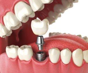 تقنية جديدة لزرع الأسنان بدون عملية جراحية
