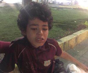 """قصة الطفل """"أحمد"""" التي جسدت خيال """"تيتو"""""""