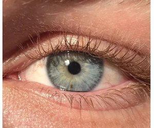 أسباب الإصابة بالرؤية الضبابية ..النوم بالعدسات والتهابات تغيير المواسم