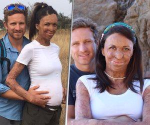 """""""توريا"""" أيقونة الحب صاحبة الجسد المشوه تضع طفلها الأول بعد 7 سنوات من الحادث"""