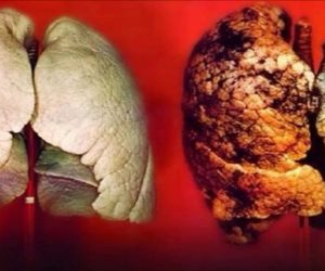 اعرف الفرق بين «كورونا» والأنفلونزا