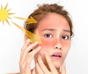 احصلي على بشرة ناعمة كالحرير.. تجنبي أشعة الشمس الحارقة واختاري منظف مناسب