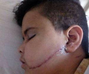 طفل «كفر الجبل» أمام النيابة: «حاولت الدفاع عن طالب وكانت النتيجة تشويه وجهي»