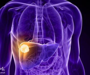 اطمن على نفسك.. متى يجب عمل فحوصات التهاب الكبد سي؟