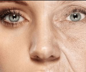 ما هي أسباب ظهور الأوردة البارزة تحت العينين؟