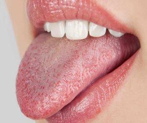 جفاف الفم.. الأمراض المسببة والعلاج الأمثل