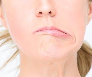كل ما تريد معرفته عن التهاب العصب السابع.. الأعراض وطرق العلاج
