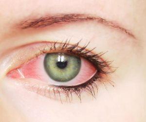 تجنب هذه الأخطاء للمحافظة على صحة عينيك