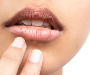تعرف على 7 أسباب وراء جفاف الفم (فيديو جراف)