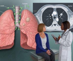 السعال المصحوب بالدم الأبرز.. ما هي الأعراض الأكثر شيوعا لسرطان الرئة؟