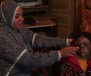 رحلة عذاب الطفلة سلمى: بدأت بـ «حبة».. وانتهت بالتشويه (صور)