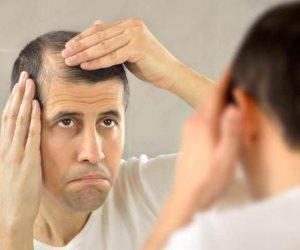 بعد الإصابة بداء الثعلبة.. هل ينمو الشعر مرة أخرى؟