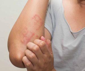 4 تغييرات تحدث للجلد إذا أصبت بفيروس كورونا.. منها تورم الأصابع