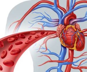 هل تعاني من ضيق الأوعية الدموية؟.. تعرف على كيفية الوقاية منها