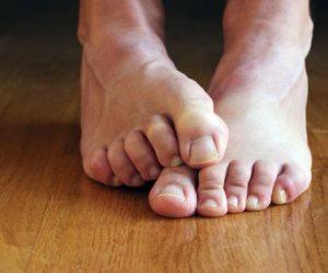 نصائح لحماية قدميك من الأمراض الجلدية
