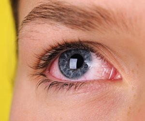تعرف على مدة شفاء العين بسبب التهاب القرنية
