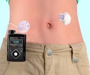 مضخة الإنسولين.. كيف تتعايش مع مرض السكر النوع الأول بدون مضاعفات؟